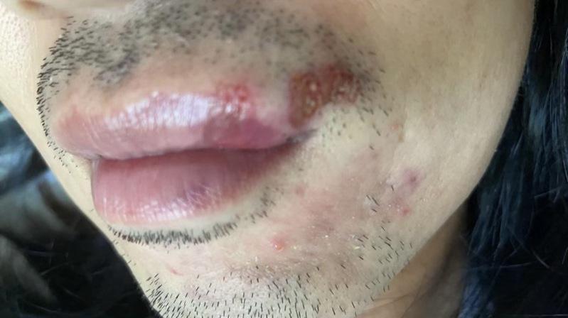 刘先生嘴角破裂,一颗牙齿被打掉。(刘太太提供)