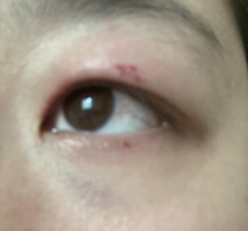 刘太太的左眼受伤充血。(刘太太提供)
