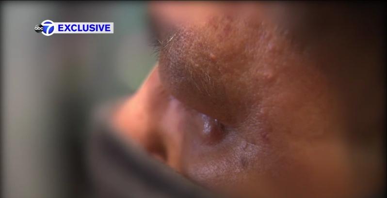 菲律宾裔男日前在上东城地铁站,遭人暴打。(截自Eyewitness News ABC7NY)