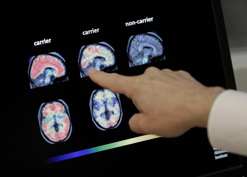 一些民眾染疫痊癒後數周仍持續通報,他們有注意力不集中、健忘和其他認知能力問題,而專家擔心這可能會讓他們提早出現失智症。美聯社